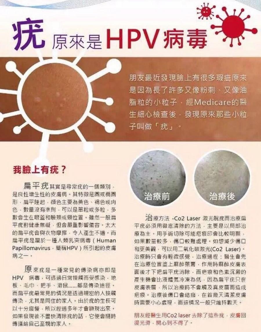 疣原來是HPV病毒 朋友最近發現臉上有很多瑕疵原來 是因為長了許多又像粉刺、又像油 脂粒的小粒子,經Medicare的醫 生細心檢查後,發現原來那些小粒 子叫做「疣」 我臉上有疣? 扁平疣其實是尋常疣的一個類別 是良性增生性的皮膚病,其特徵是圆或橢圓 形、扁平隆起、顏色主要為黃色、褐色或肉 色、數量沒有準則,可以是單粒或多粒,多 數會生在眼蓋和臉頰或頸位置,雖然一般扁 平疣對健康無礙,但會嚴重影響儀容,太大 的扁平疣會與衣物摩擦,令人產生不適,而 扁平疣是屬於一種人類乳突病毒( Human Papillomavirus,簡稱HPV)所引起的皮膚 病之一. 治療前 治療後 治療方法-CO2 Laser激光脫疣而治療扁 平疣仍須用徹底清除的方法,主要是以局部治 療為主,用手術切除可能疤痕印會比較明顯 如果數量較多,傷口較難處理,如想減少傷口 和更美觀.可以用二氧化碳激光(Co2 Laser). 治療時只會有輕微感覺,治療過程:醫生會先 在治療位置塗上麻醉藥膏,作用時麻醉皮膚表 面後才下把扁平疣消除,而疤痕和色素沉澱的 產牛機會比液體氮冷凍為低,因為扁平疣只在 皮膚表層,所以治療時不會觸及真皮層而造成 疤痕,治療後傷口會結痂,在首幾天清潔皮膚 時需要小心處理,而這情況一般只維持數天。 原來疣是一種常見的傳染病亦即是 HPV 病毒,可透過日常接觸而受感染,地 板、毛巾,把手、滑鼠 都是傳染途徑 而扁平疣最常見的情況是透過親密的人接觸 傳染,尤其是同住的家人。由於疣的生長可 以十分緩慢,所以經送多年才會纈現出來 如果發現後不盡快清除疣的話,它便會隨時 傳播給自己至親的家人 朋友經醫生用CO2 laser去除了這些疣,皮膚回 復光滑、開心到不得了,font,product