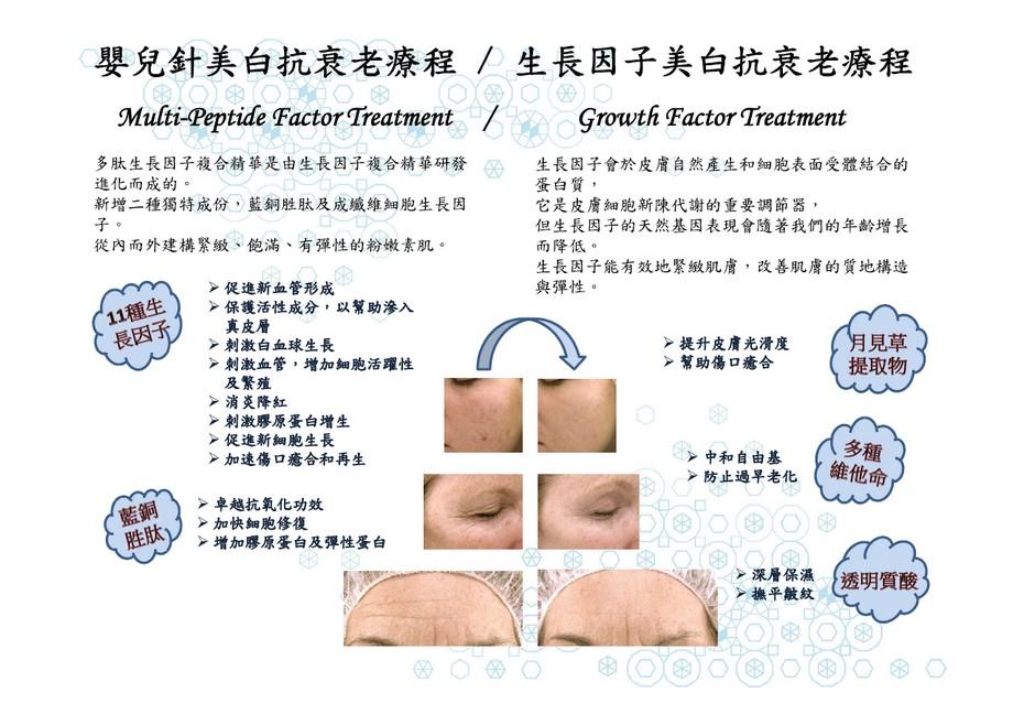 嬰兒針美白抗衰老療程/生長因子美白抗衰老療程 Muki-Peptide Factor Treatment Growth Factor Treatment 多肽生長因子複合精華是由生長因子複合精華研發 進化而成的 新增二種獨特成份,藍銅胜肽及成纖維細胞生長因 子 從內而外建構緊緻、飽滿、有彈性的粉嫩素肌 生長因子會於皮膚自然產生和細胞表面受體結合的 蛋白質 它是皮膚細胞新陳代謝的重要調節器 但生長因子的天然基因表現會隨著我們的年齡增長 而降低。 生長因子能有效地緊緻肌膚,改善肌膚的質地構造 與彈性。 促進新血管形成 保護活性成分,以幫助滲入 真皮層 刺激白血球生長 刺激血管,增加細胞活躍性 及繁殖 消炎降紅 刺激膠原蛋白增生 促進新細胞生長 加速傷口癒合和再生 提升皮膚光滑度 幫助傷口癒合 見草 提取物 多種 中和自由基 防止過早老化 卓越抗氧化功效 加快細胞修復 geek:增加膠原蛋白及彈性蛋白 深層保濕 撫平皺紋 透明質酸,face,text,nose,product,cheek