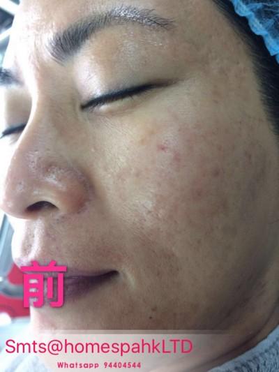 Smts@homespahkLTD Whatsapp 94404544,eyebrow,face,cheek,nose,skin
