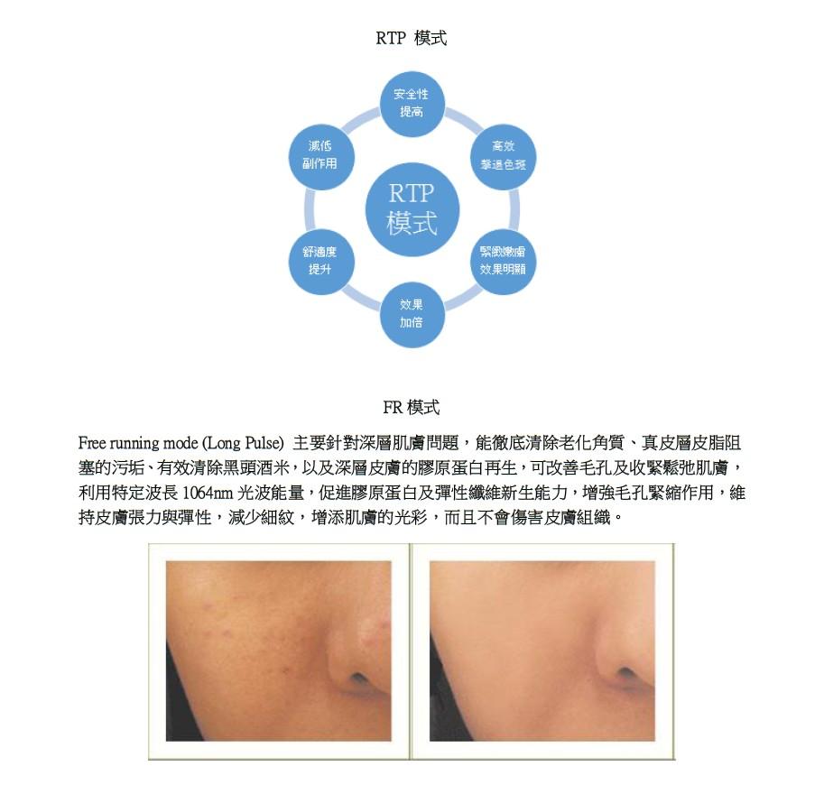 RTP模式 安全性 提高 減低 酬乍用 高激 RTP 模式 舒適度 提升 緊緻嫩膚 效果明顯 效果 加倍 FR模式 Free running mode (Long Pulse)主要針對深層肌膚問題,能徹底清除老化角質、真皮層皮脂阻 塞的污垢、有效清除黑頭酒米,以及深層皮膚的膠原蛋白再生,可改善毛孔及收緊鬆弛肌膚 利用特定波長1064nm光波能量,促進膠原蛋白及彈性纖維新生能力,增強毛孔緊縮作用,維 持皮膚張力與彈性,減少細紋,增添肌膚的光彩,而且不會傷害皮膚組織。,text